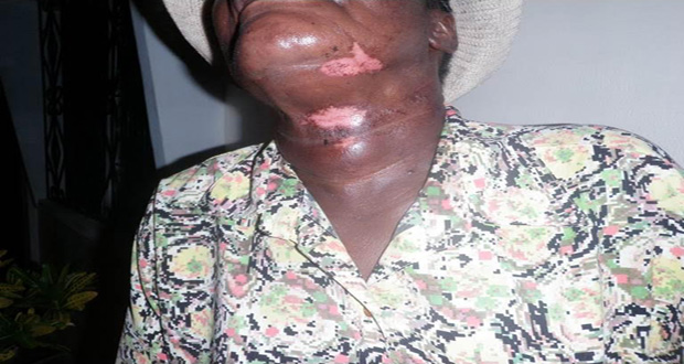 The Pastor's neck that is badly bruised after the bandit reportedly choked her